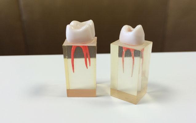 Wurzelspitzenresektion und Entfernung von Weisheitszähnen
